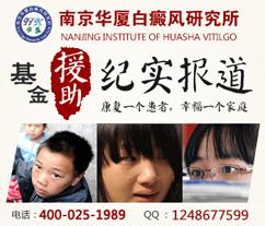 儿童白癜风护理方法是哪些